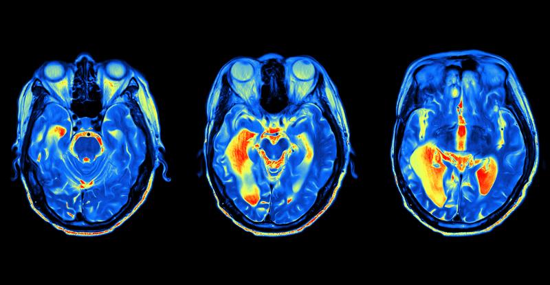 fMRI neuromarketing